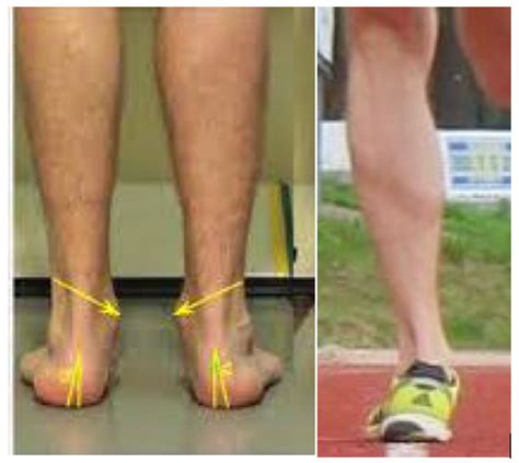 Calf Muscle Tightness, Achilles Tendon Length and Lower