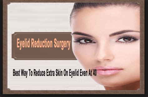 Eyelid Reduction Surgery: Best Way To Reduce Extra Skin On